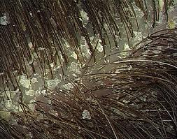 Dandruff: Causes and Remedies