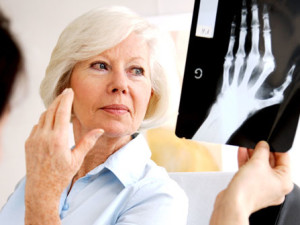 Treatments for Rheumatoid Arthritis: Physical Therapy and Surgery
