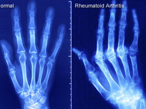 What You Should Know About Rheumatoid Arthritis