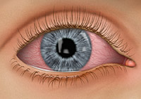 How to Prevent Pink Eye (Conjunctivitis)