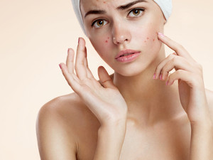 7 Common Mistakes in Treating Acne