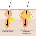 These 3 Factors Contribute to The Formation of Acne